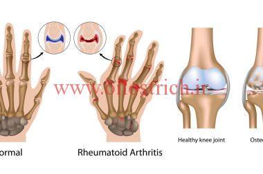 تأثیر روغن شترمرغ روی تورم مفاصل یا آرتریت